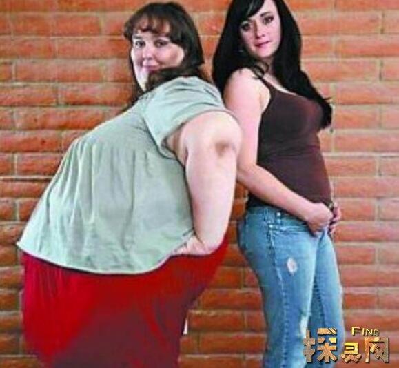 世界上最重的人:蘇珊娜·埃曼,重1450斤堪比一頭大象